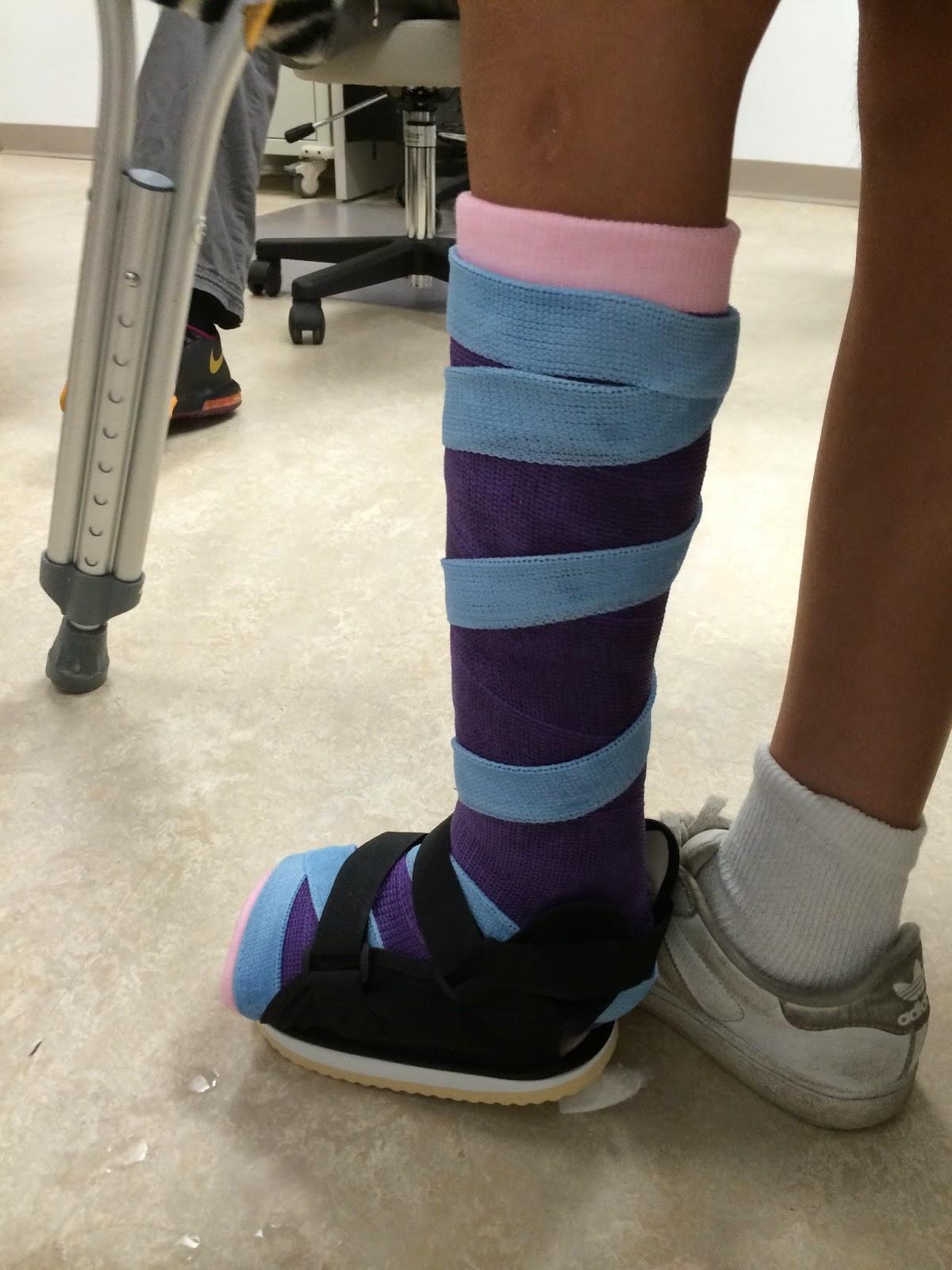 fibular hemimelia leg lengthening pin removal and walking