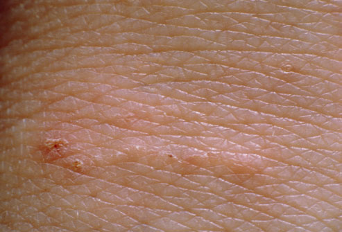 scabies burrows pictures