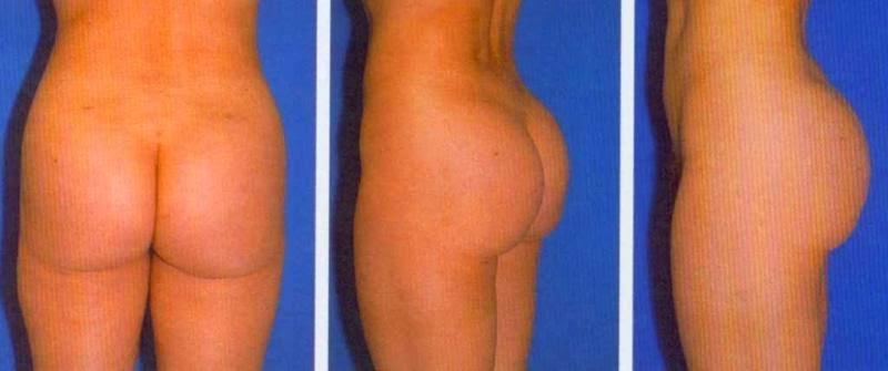 5 cosas que hay que saber sobre los implantes de seno