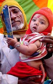 Kisah Bayi Unik - Bayi Ajaib - Bayi Paling Aneh di Dunia