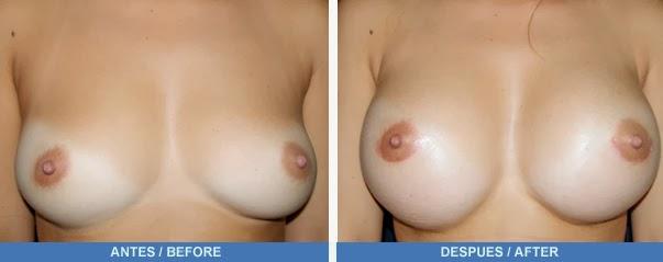 Es visible el borde implanta los pechos