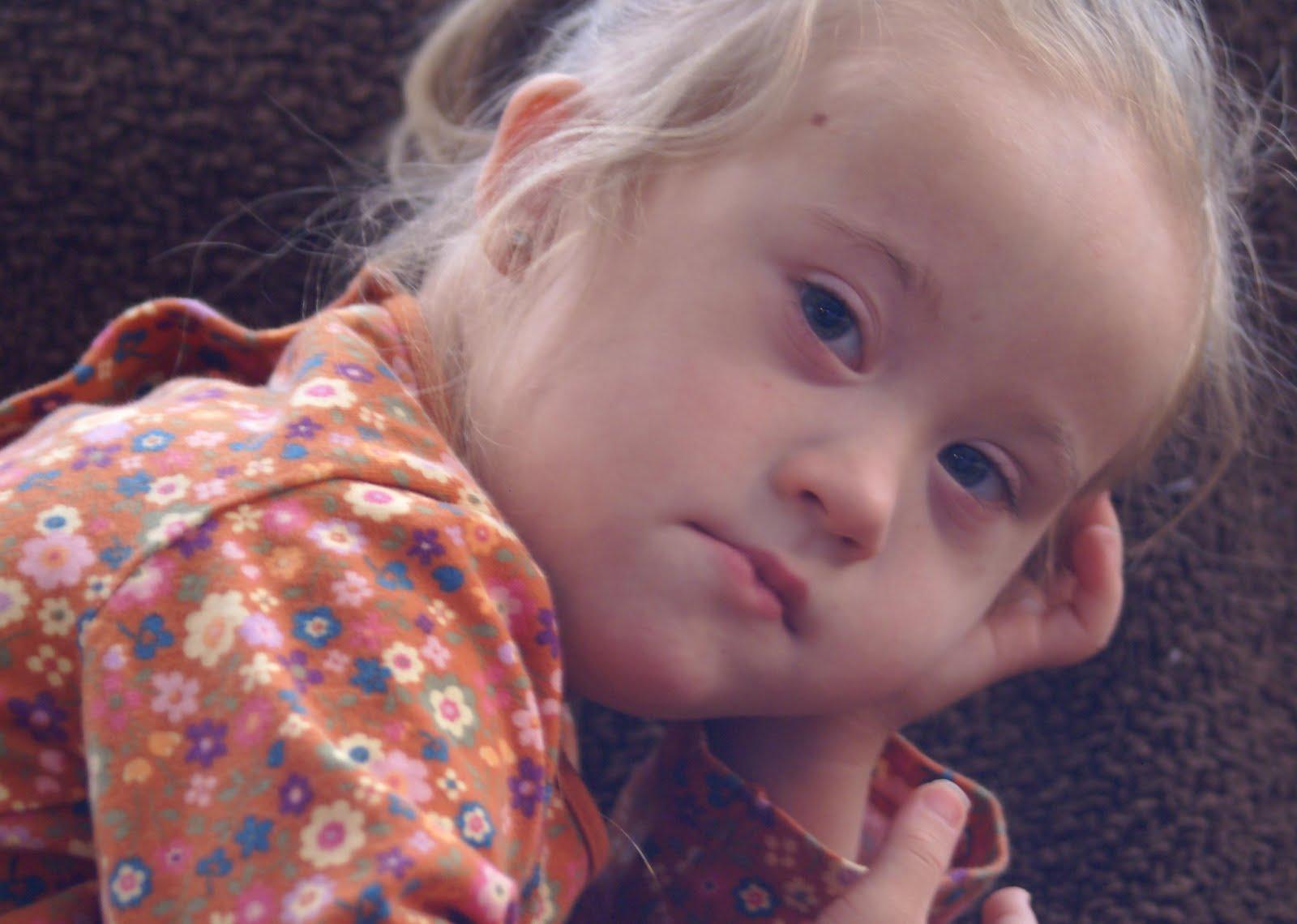 Дети с синдромом гольденхара фото