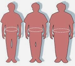 Weight Loss Surgery Options Fort Worth TX