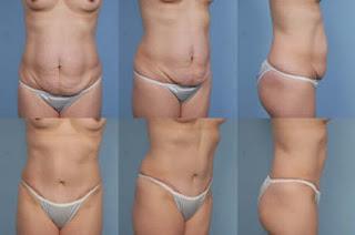 Abdominoplastia Imagens