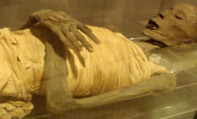 Χειρουργικό μεταλλικό εμφύτευμα σε μούμια 2.600 ετών