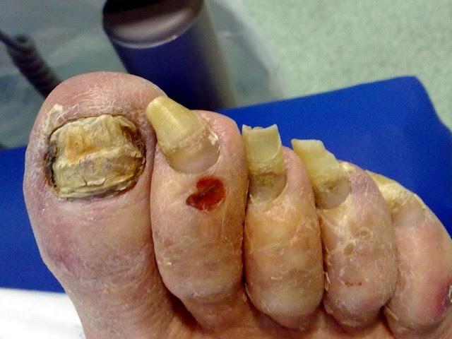Los mejores ungüentos del hongo de los pie las revocaciones