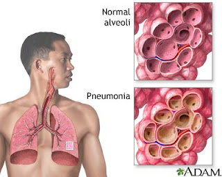 Pneumonia Nursing Diagnosis - Ineffective Airway Clearance and ...