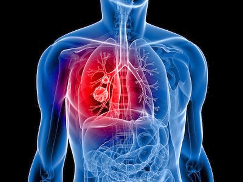 Kanker-peru-paru