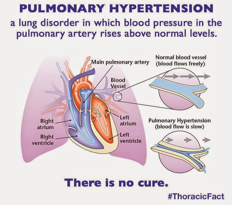 cialis for pulmonary hypertension