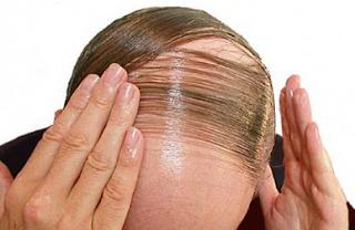 obat penumbuh rambut botak