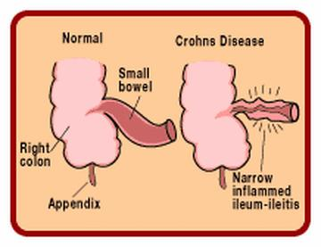 crohns disease causes symptoms and treatments Treatment for crohn's disease depends on the location, severity, complications and response to earlier treatment the goal of the ibd center's specialists is to control inflammation, correct nutrition problems and relieve symptoms of pain, diarrhea and rectal bleeding.