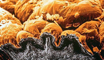 Arrugas microscópicas