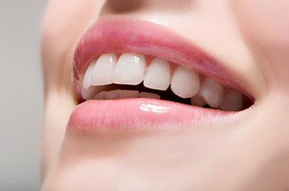 Methods for bleaching teeth