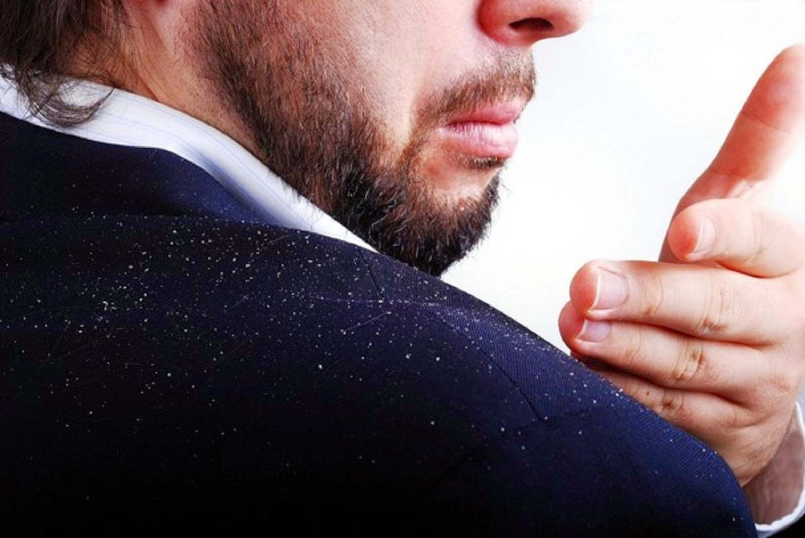 Tips To Rid From Dandruff Problem