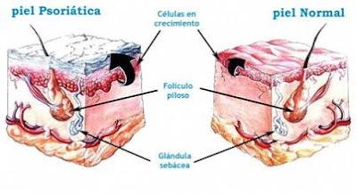 Psoriasis, qué es, síntomas, tratamientos y causa de la enfermedad