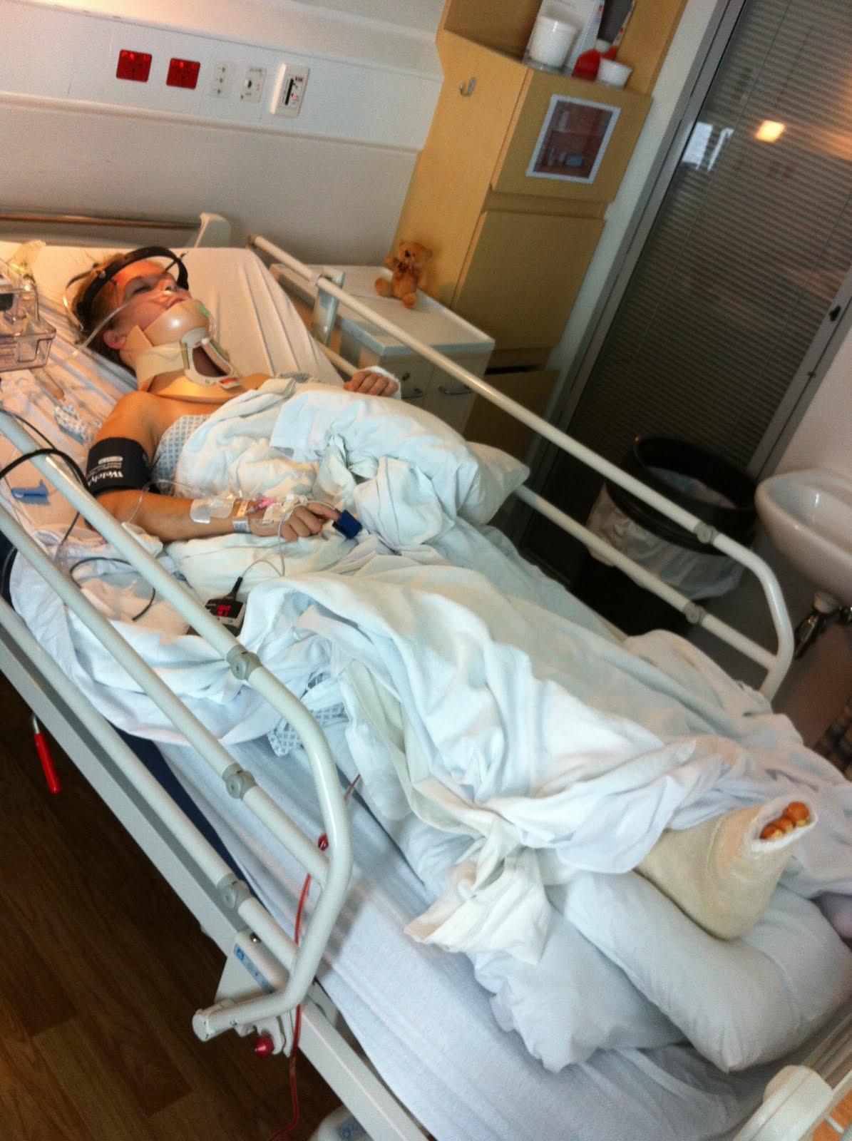 broken legs gips
