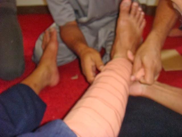 Patah Tulang kaki