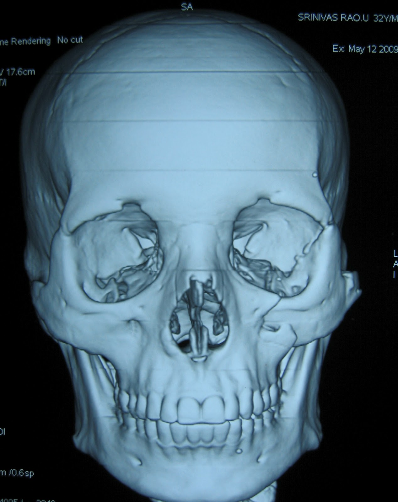 loss with fracture zygoma ct scan showing displaced fracture zygoma