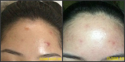 Nature Republic Real Nature Acai Berry Essence before and after