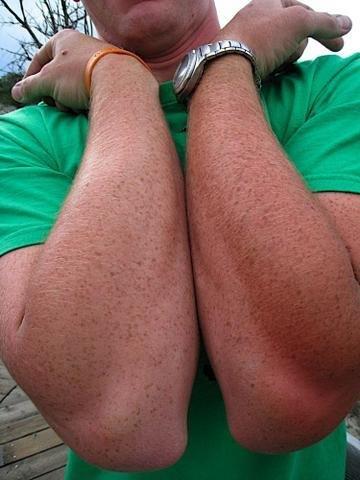 Når man er mere solbrændt på den ene arm