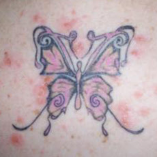 Care for tattooed skin and sunscreen options health for Allergic reaction to tattoo ink treatment