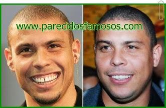 Ronaldo antes y después