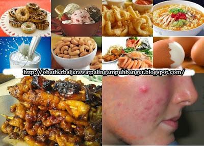 Pantangan Makanan Untuk Penderita Jerawat