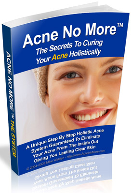 Acne No More System - FREE Video Presentation