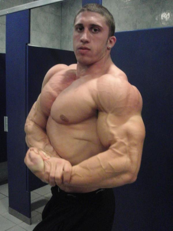 Teen Bodybuilding 2010 Winner Nicholas Nick Radici