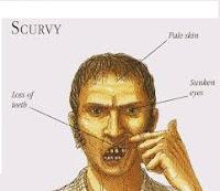 Penyakit Scurvy