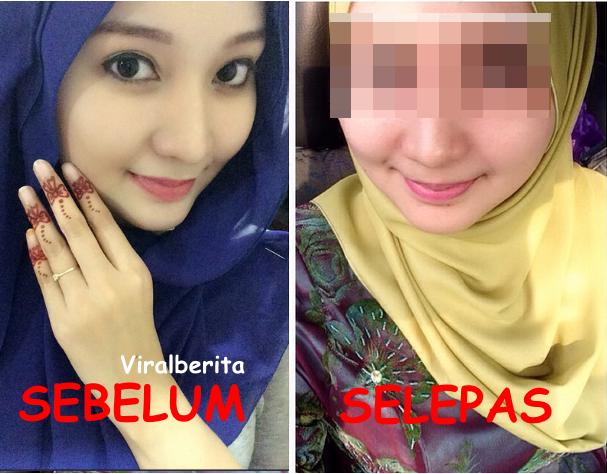 Paling Mengejutkan Wajah Terkini Nur Syafiqa Mangsa Toreh Muka Selepas Pembedahan Plastik 4 Foto