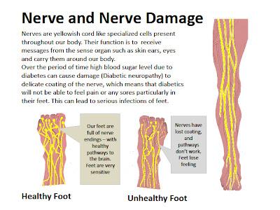 efek diabetis , kerosakan saraf