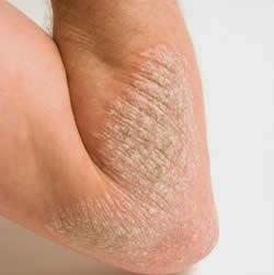 Pengobatan Dermatitis Atopik ( Penyakit Kulit ) Yang Efektif Pada Bayi