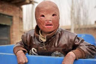 child without a face, unique news