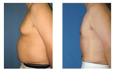Liposuction Surgeon Beverly Hills, Liposuction Specialist