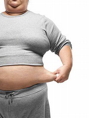 Kegemukan Obesitas