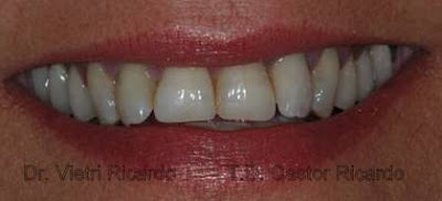toma color diente ceramica dental