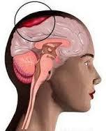 Cara Menyembuhkan Abses Otak