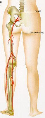 El tratamiento de la osteocondrosis en el período de la agudización