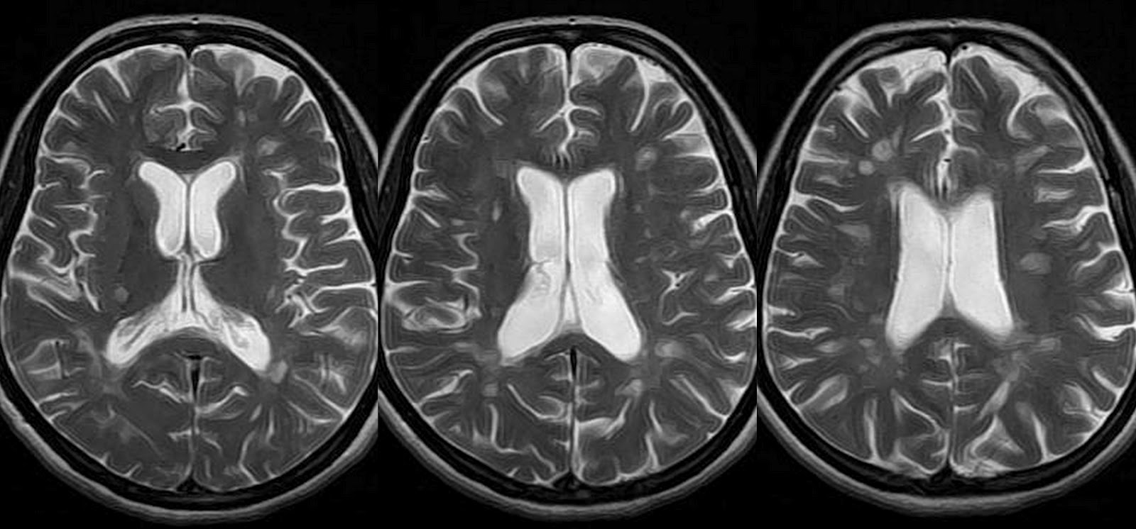 dr balaji anvekar s neuroradiology cases multiple sclerosis axial