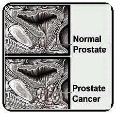 obat tradisional kanker prostat tanpa operasi