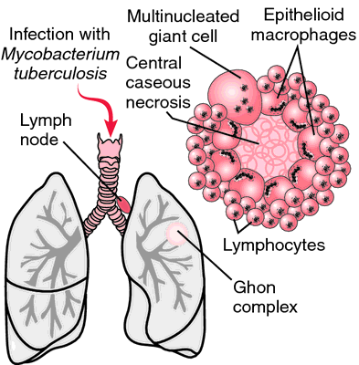 Basic Tuberculosis Information