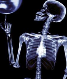 Rayos x utilización en la medicina
