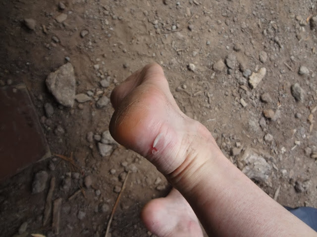 Blisters from hiking