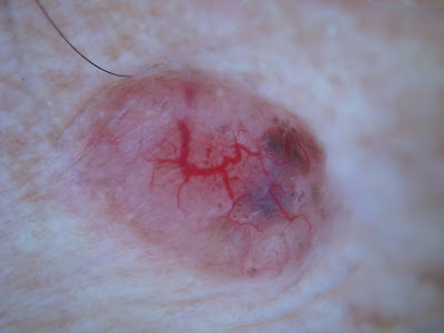 Early Basal Cell Carcinoma