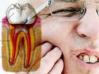 resep alami obat sakit gigi berlubang tradisional