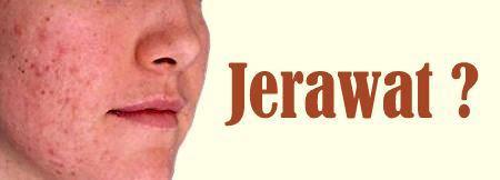 Jerawat