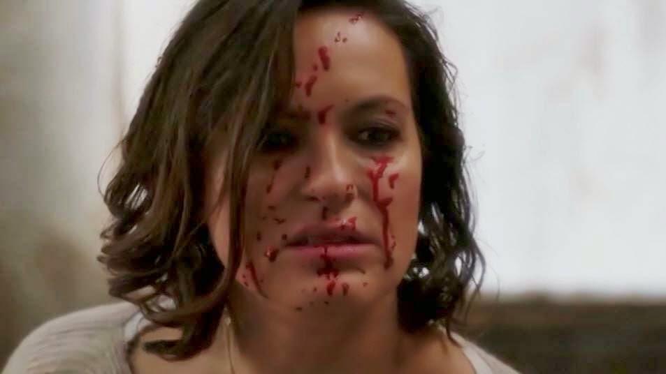 Mariska hargitay scar
