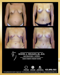 Mommy makeover-breast surgery, tummy tuck and liposuction