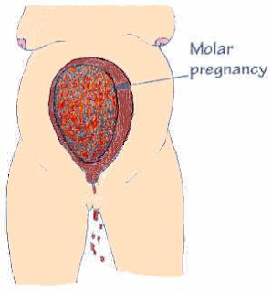 Partial Molar Pregnancy